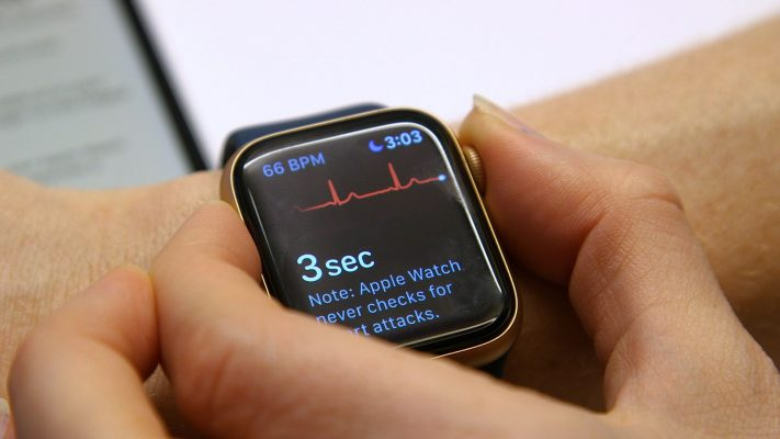 Apple Watch Elettrocardiogramma in Italia